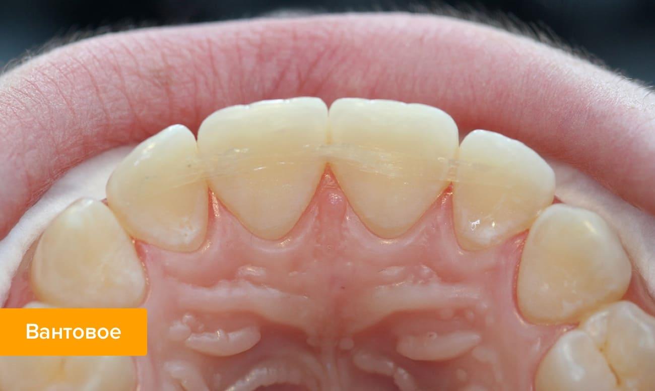 Фото зубов шинированных вантовым методом арамидной нитью