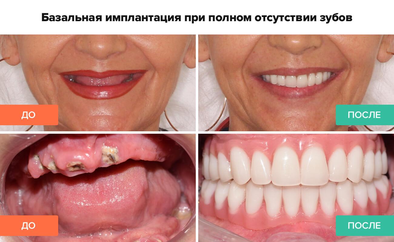Фото пациента до и после базальной имплантации при полном отсутствии зубов