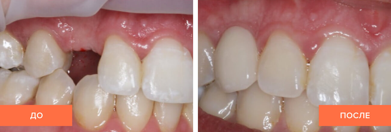 Фото до и после установки импланта пациенту