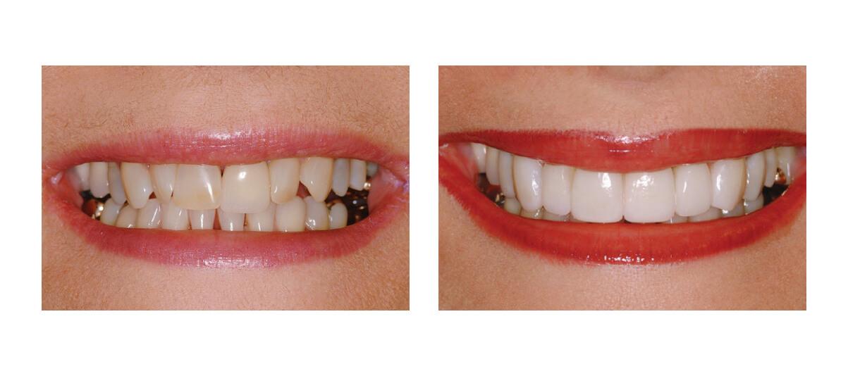 Фото пациента до и после установки люминиров на зубы