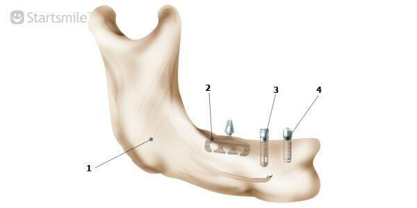 Нижняя челюстная кость с пластиночным, цилиндрическим и винтовым (корневидным) имплантатом