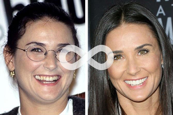 Фото кривых зубов Деми Мур до и после лечения