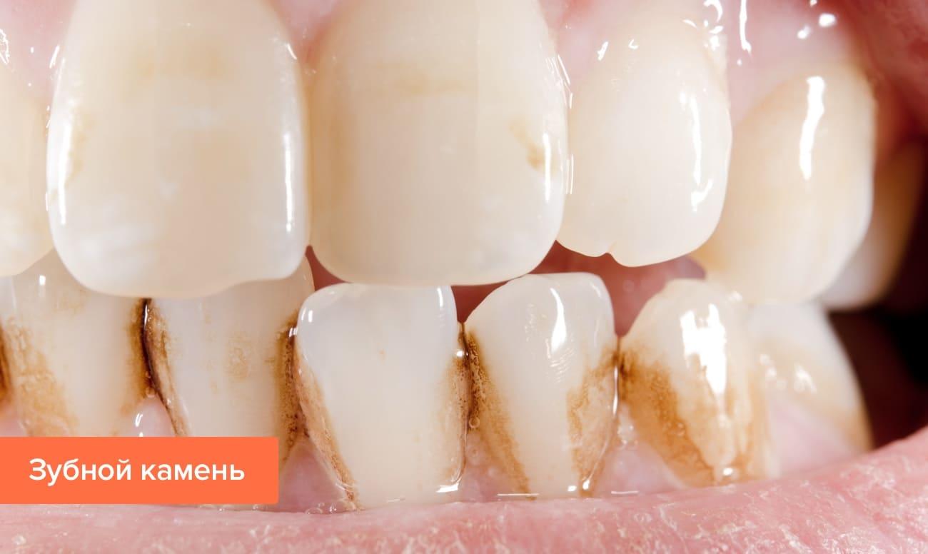 Фото зубного камня