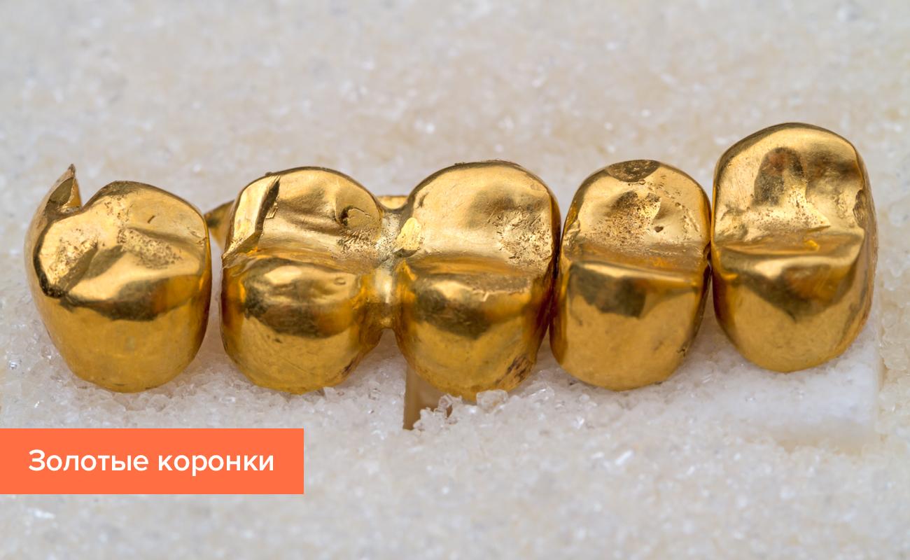 Фото коронки на зуб из золота