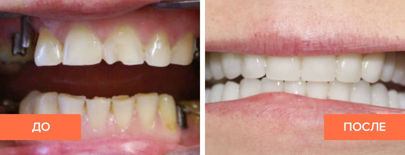 Фото пациента до и после установки протеза