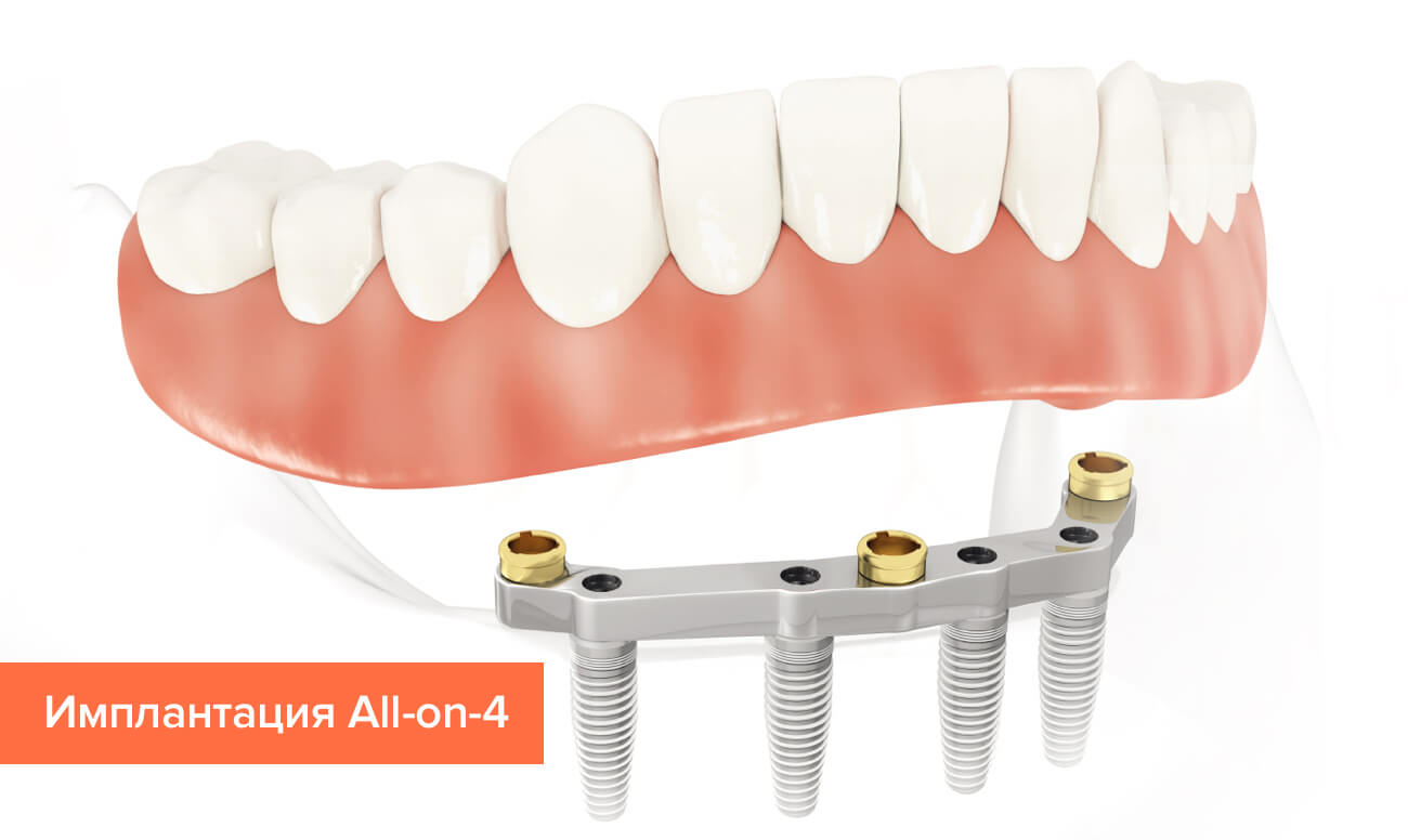 Имплантация All-on-4 в картинках