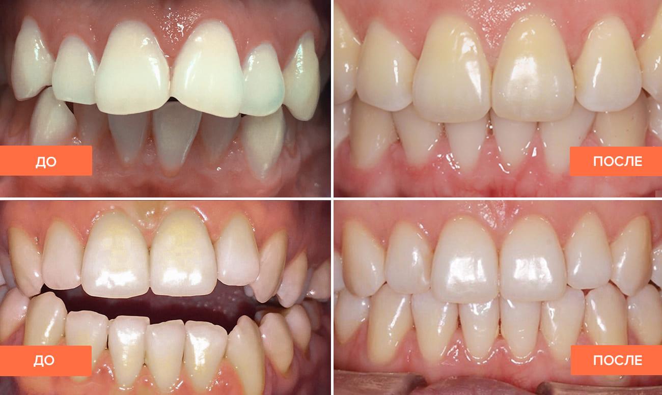 Фото пациента до и после лечения элайнерами