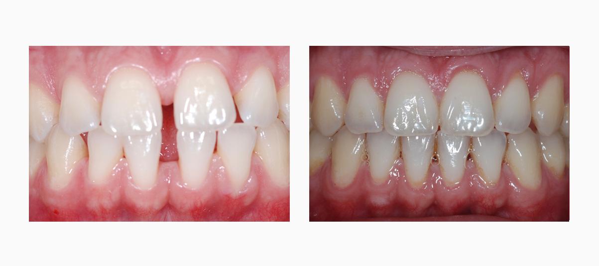 Фото зубов до и после лечения на жлайнерах Инвизилайн