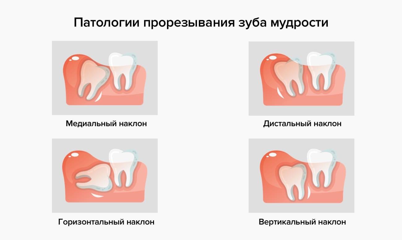 Патологии прорезывания зуба мудрости в картинках