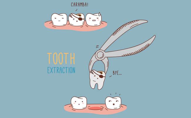 Удаление зубов детям под наркозом в картинках