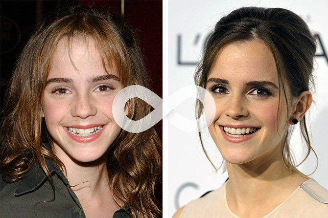 Фото кривых зубов Эммы Уотсон до и после лечения