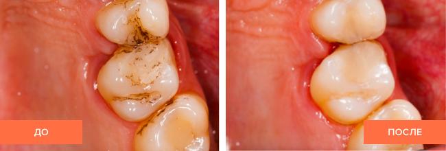 Фото пациента до и после лечения зубов
