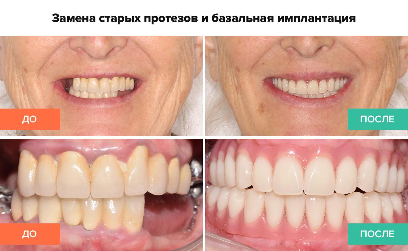 Фото пациента до и после базальной имплантации на нижней и верхней челюсти