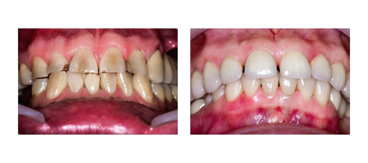 Фото пациента до и после реставрационного отбеливания
