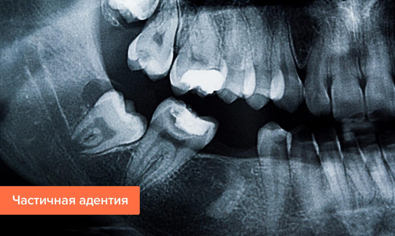 Частичная адентия на рентгене