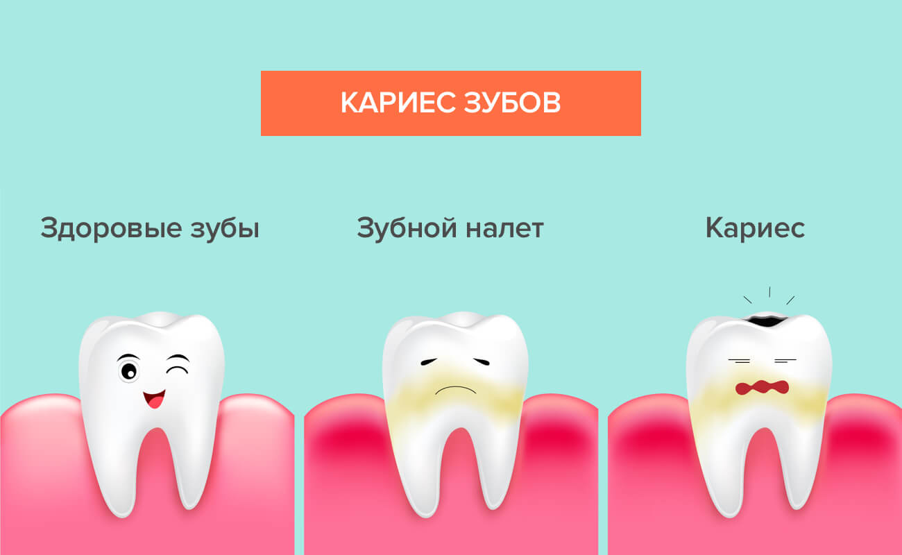 Этапы возникновения кариеса зубов в картинках