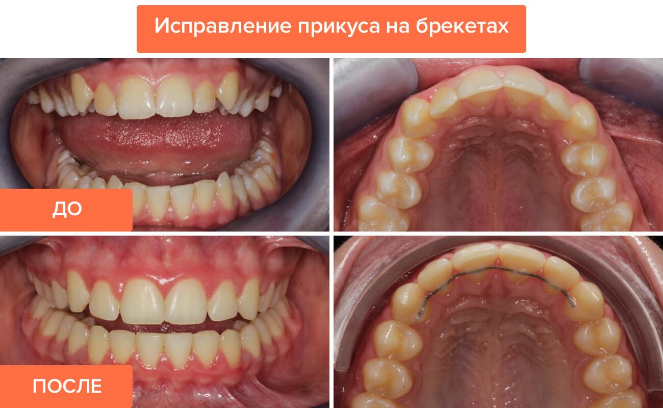 Как выровнять зубы без брекетов у взрослых