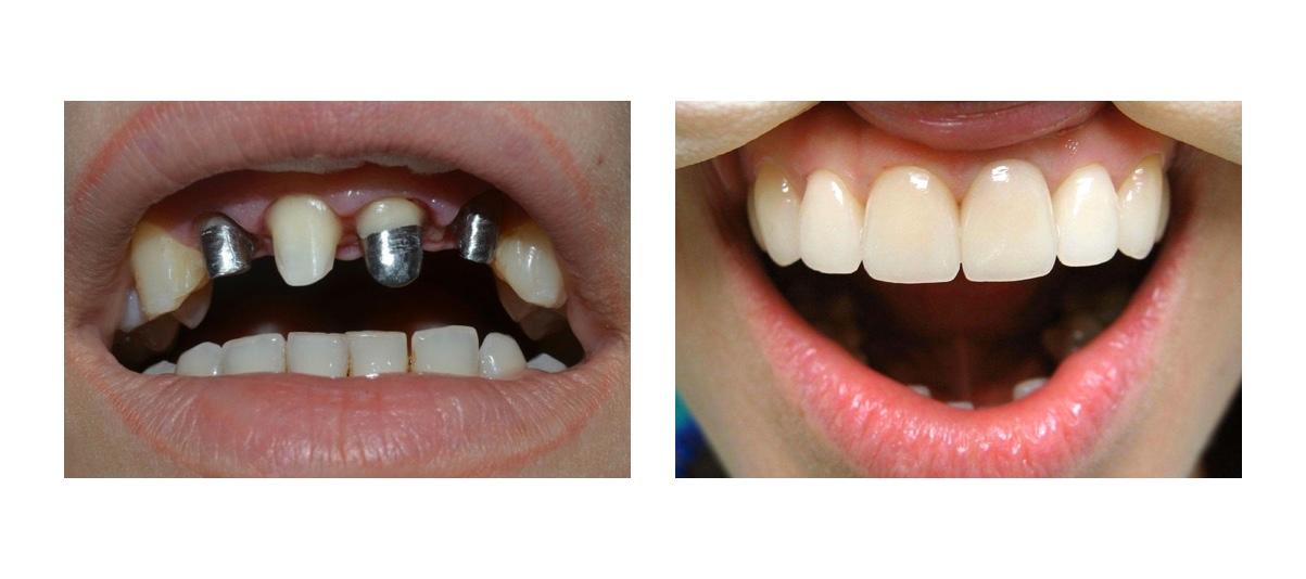 Фото пациента до и после протезирования металлокерамикой