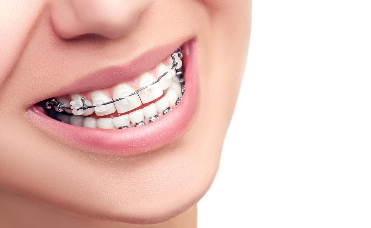 Фото керамических самолигирующих брекетов на зубах