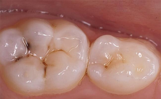 Кариес молочных зубов у детей раннего возраста (фото) и 24