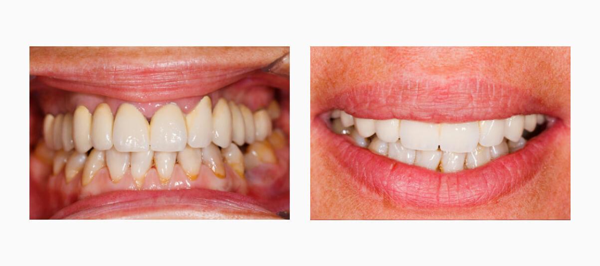 Фото коронок на передних зубах до и поле установки