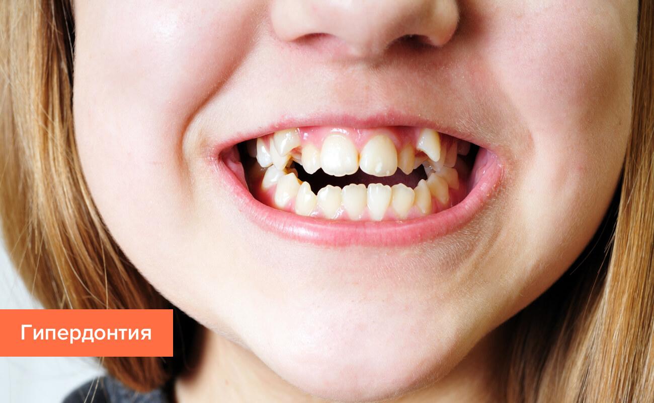 Фото сверхкомплектных зубов (гипердонтии) у ребенка