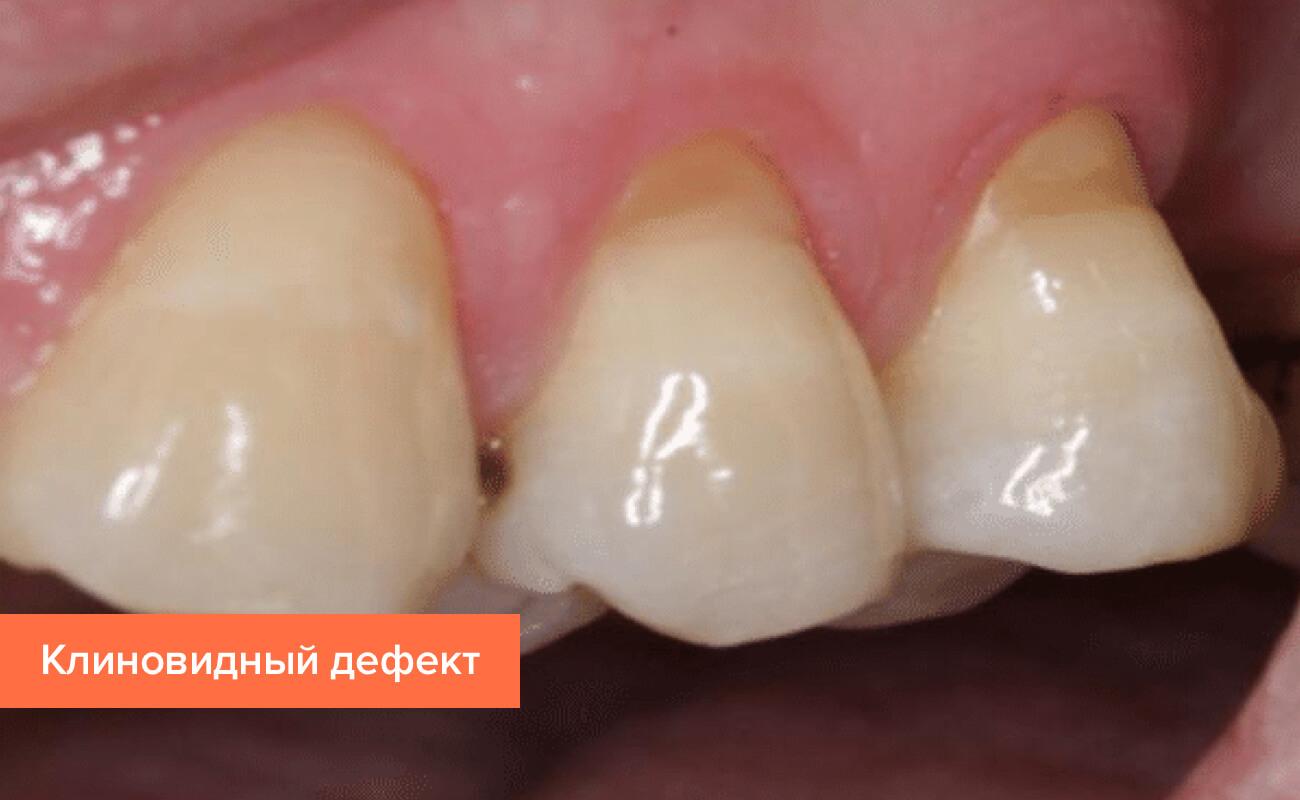Фото клиновидного дефекта на зубах