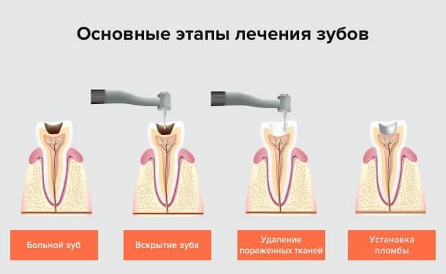 Этапы лечения зубов в картинках