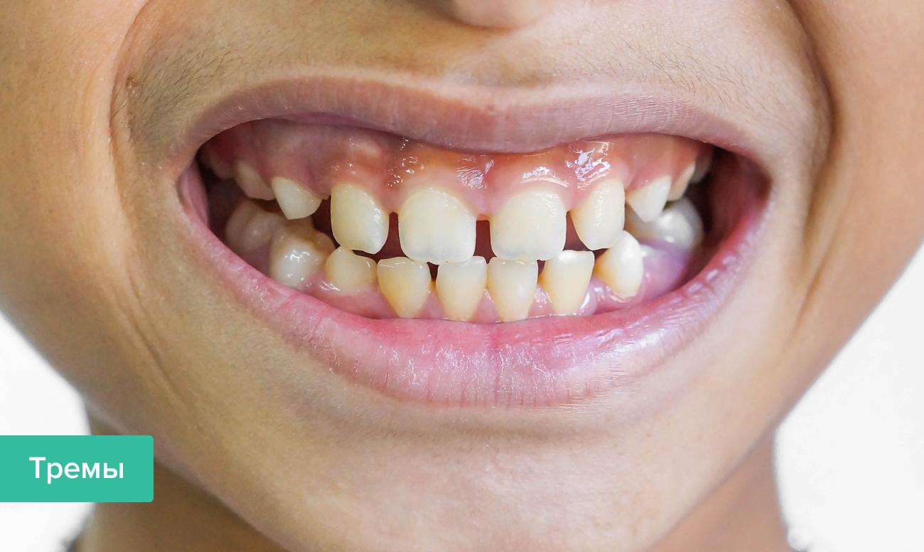 Фото трем зубов