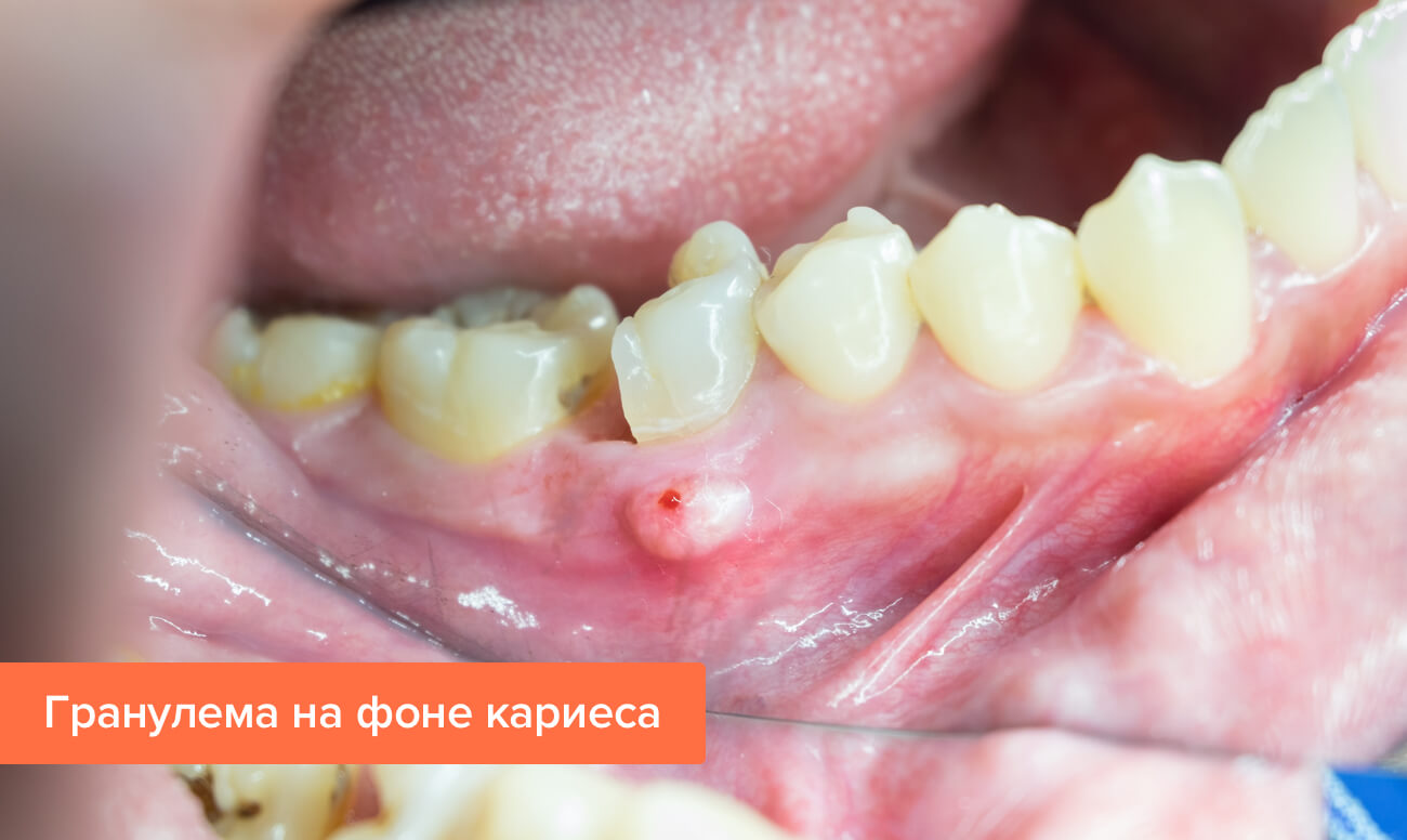 Гранулема зуба : лечение в клинике и народными средствами 7