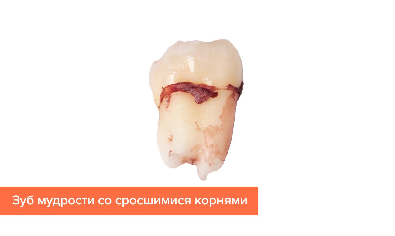 Фото дистопированного зуба мудрости со сросшимися корнями