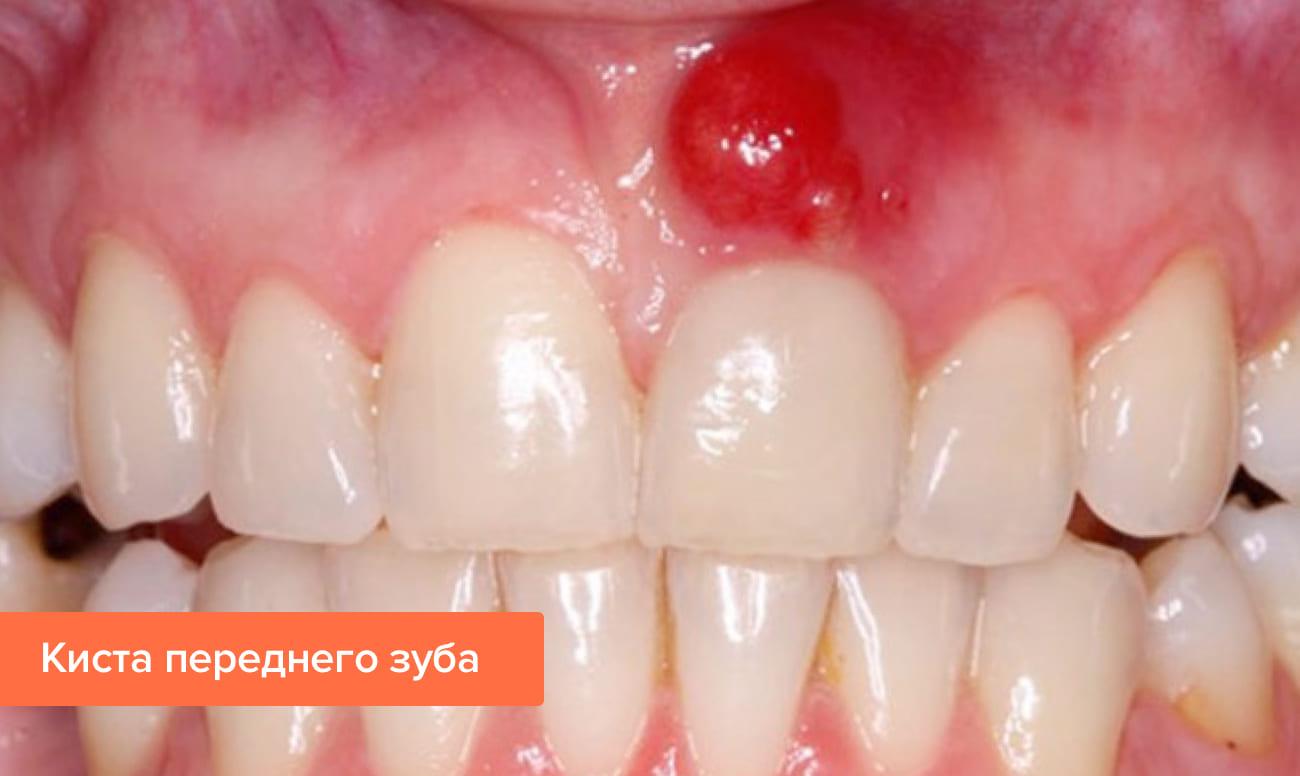 Фото кисты переднего зуба