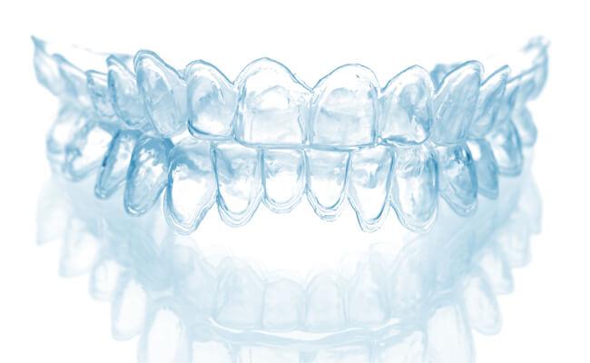 Фото капы для зубов