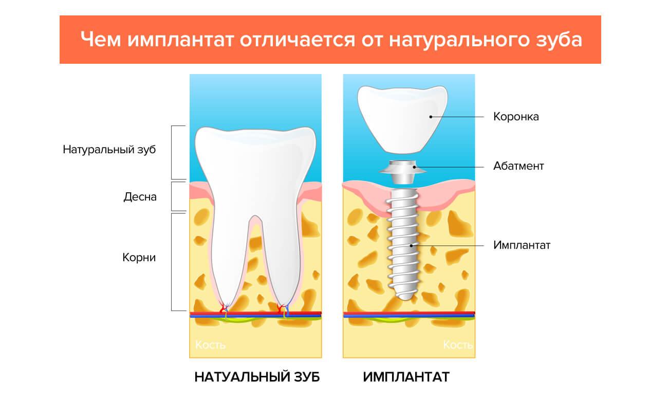 Отличия имплантата от натурального зуба в картинках