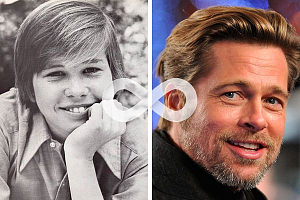 Брэд Питт в детстве имел не самую идеальную улыбку