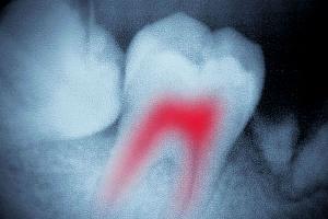 Киста зуба. Что это такое?