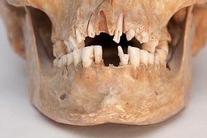 Зубной налет как источник знаний