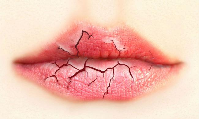Ксеростомия — что это такое, причины, симптомы, лечение — Startsmile
