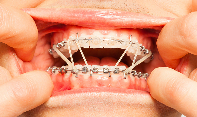 Болят зубы после брекетов — что делать?