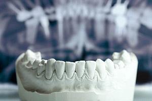 Восстановление кости