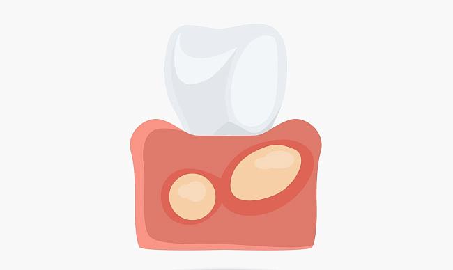 Как в домашних условиях вылечить флюс зуба