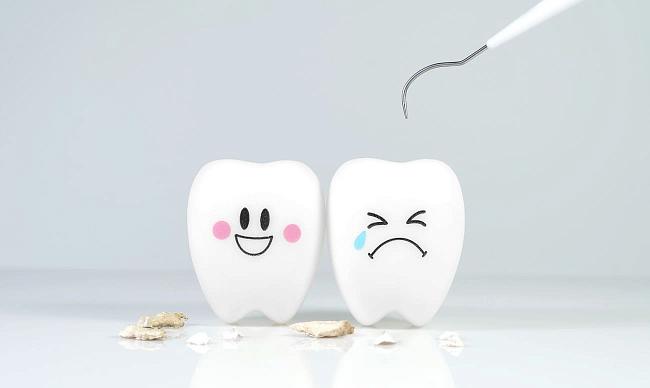 Как удалить зубной камень в домашних условиях?