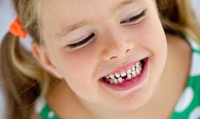 Кривые зубы у детей (7 фото): что делать если криво лезут коренные и молочные зубы