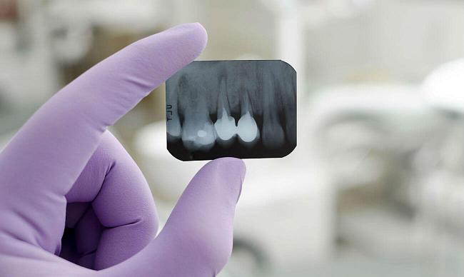 Рентгеновский снимок зуба