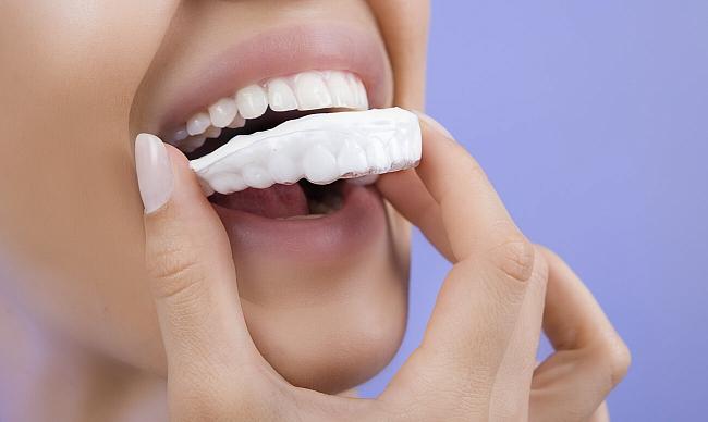 Скидки, Косметическое отбеливание зубов, купоны