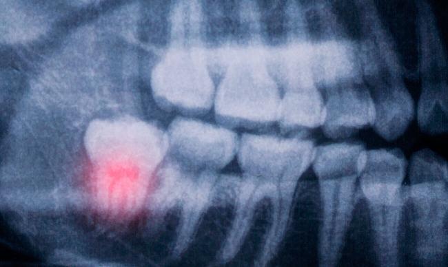 Пульпит зуба мудрости лечить или удалять