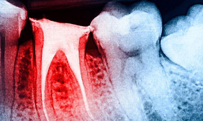Эндодонтическое лечение