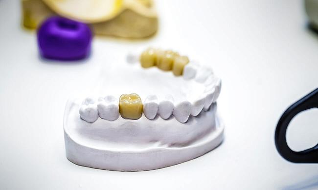 Какую пломбу лучше ставить на жевательные зубы