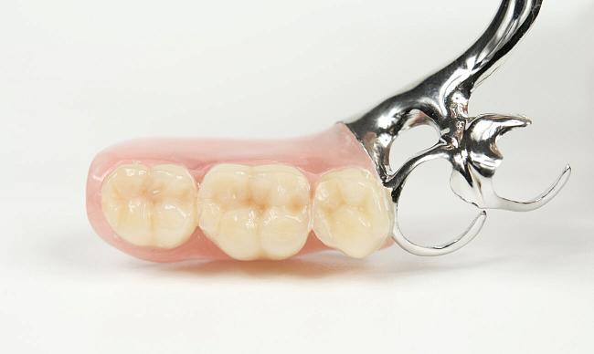 Частичный съемный протез зубов