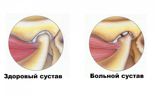 Лечение сустава челюти варианты формирования тазобедренных суставов